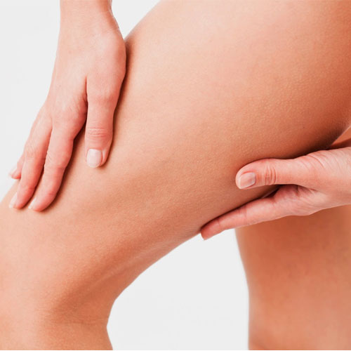 Tips to rid of cellulite on thighs , tips to rid of cellulite on thighs,  how to get rid of cellulite on thighs,  latest article,  health tips,  fitness & exercise,  nutrition guide,  lose weight,  tips to lose thigh weight,  cellulite