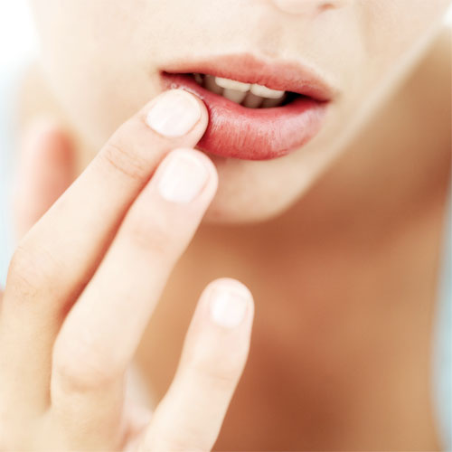 Chapped Lips? try these home remedies, how to stop getting chapped lips,  chapped lips,  home remedies for chapped lips,  how to prevent chapped lips,  water,  oils for chapped lips