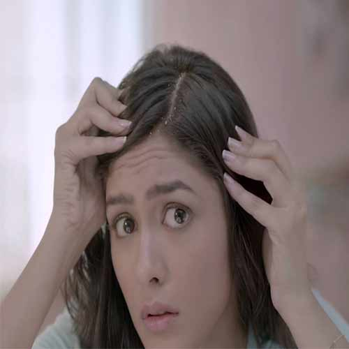 Effective home remedies to fight dandruff problem.