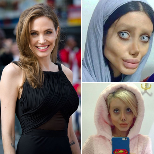 Amazing! A women undergoes 50 surgeries to look like Angelina Jolie