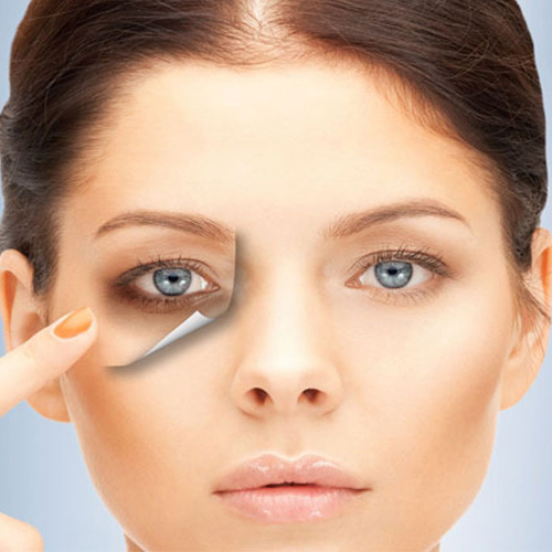 Say bye to dark circles through Natural products, say bye to dark circles through natural products,  how to get rid of dark circles,  try natural products for removing dark circles,  what products to use for reducing dark circles,  kitchen products for dark circles,  ifairer