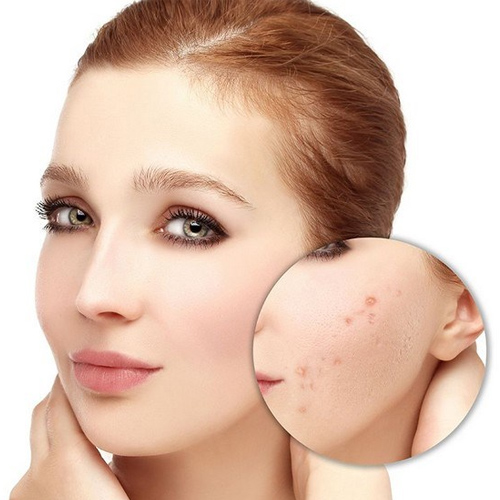 Home Remedies for pimples free glowing skin naturally, home remedies for pimples free glowing skin naturally,  home remedies,  best acne home remedies,  home remedies for glowing skin,  how to get rid of pimples,  home remedies for acne,  home remedies,  skin care,  ifairer