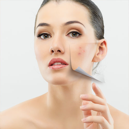 Home remedies: Remove dark spots naturally within a month, home remedies,  remove dark spots naturally within a month,  home remedies to get rid of dark spots on your face,  home remedies for black spots on your face,  skin care,  ifairer
