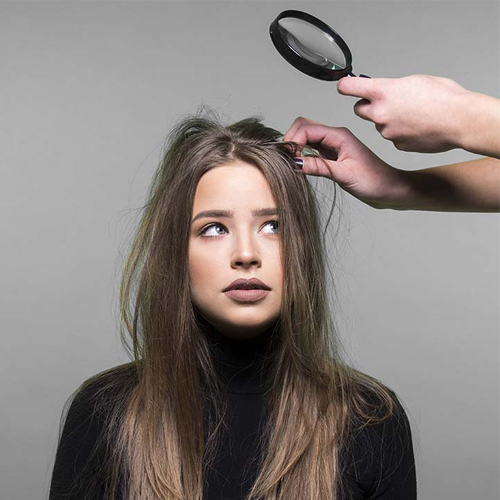 Research: Fungus linked to dandruff may worsen intestinal disease