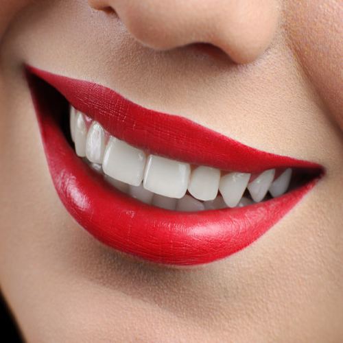 Study: Whitening Products May Cause Tooth Decay, study: whitening products may cause tooth decay,  study: whitening teeth,  tooth decay,  new research,  ifairer