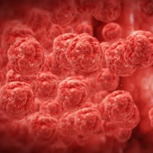 Tiny bubbles in our body to fight cancer better than chemo, Researchers find, tiny bubbles in our body to fight cancer better than chemo,  researchers find,  study,  body,  cancer,  chemo,  ifairer