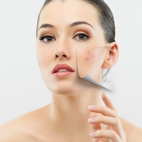 Study: Stress, poor diet, linked with acne , study,  stress,  poor diet,  linked with acne,  stress,  poor diet,  acne,  health tips,  health care,  skin care,  ifairer