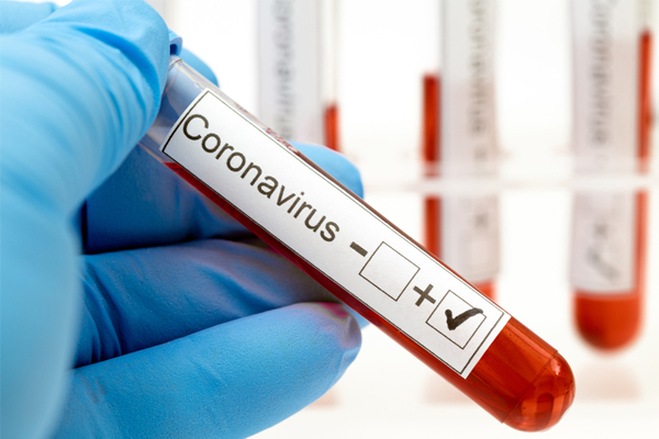 Indian scientists found a drug against corona virus, indian scientists found a drug against corona virus,  indian scientists,  potential drug,  covid-19,  coronavirus,  coronavirus news,  ifairer
