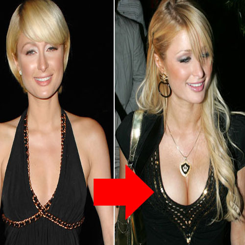 5 Celebs Whose Plastic Surgery Went Wrong , 5 celebs whose plastic surgery went wrong, paris hilton, daryl hannah, dolly parton, nicole coco austin, carrot top