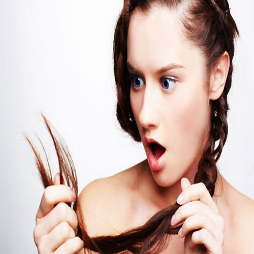 7 Natural tips to prevent hair loss, 7 natural tips to prevent hair loss,  natural tips to prevent hair loss,  tips to prevent hair loss,  natural tips for stop hair fall,  how to prevent hair loss,  how to stop hair fall,  how to take care of hair,  beauty tips,  tips for hair care,  how to prevent hair loss,  how to take care of hair in summer