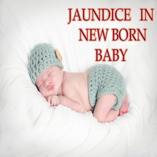 Jaundice in new born baby, jaundice in new born baby,  health,  jaundice,  new born baby disease
