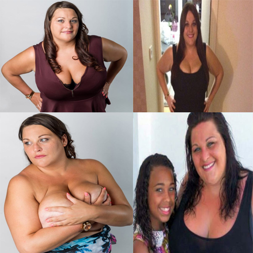 My Enormous Breasts Ruining My Life  , kim mills,  enormous breast,  health,  enormous breasts ruining my life,  breast surgery,  heavy breast,  operation,  mother heavy breast,  nhs,  shrink chest,  ruining breast,  chest ruining,  exercise,  heavy breast ruining life and health,  d cup,  abnormal breast,