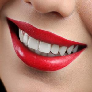 Study: Whitening Products May Cause Tooth Decay