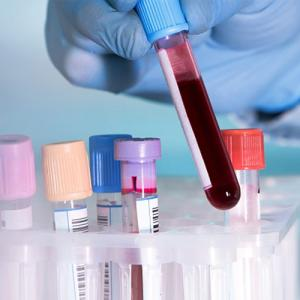 New blood test capable of detect 20 types of cancers
