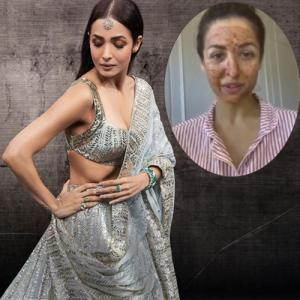 Malaika Arora share home remedy to cure acne, get clear and glowing skin
